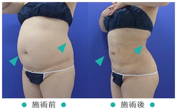 吸引 脂肪 脂肪吸引にはたくさんの種類がある!?知らないと損する基礎知識