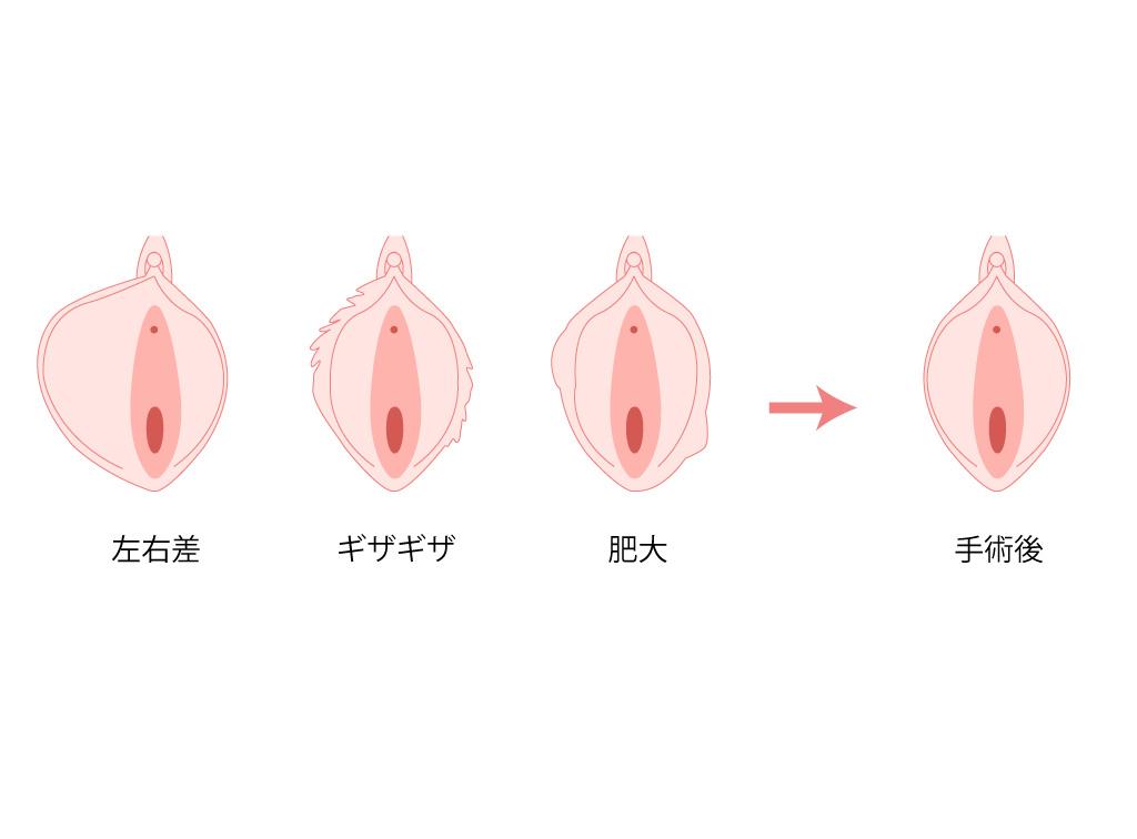 小陰唇症状